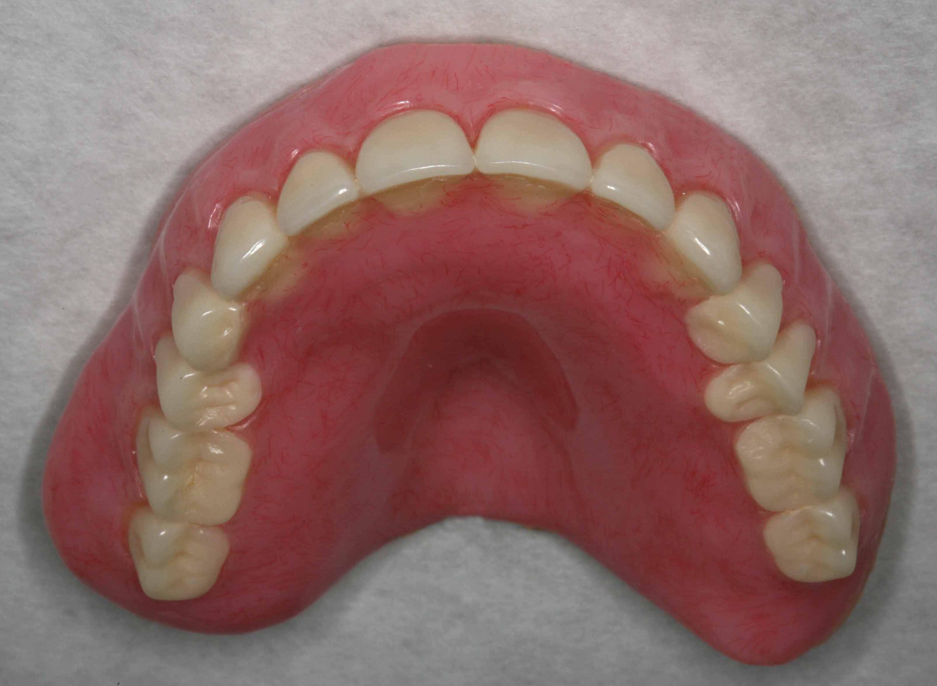 Immediate Dentures For