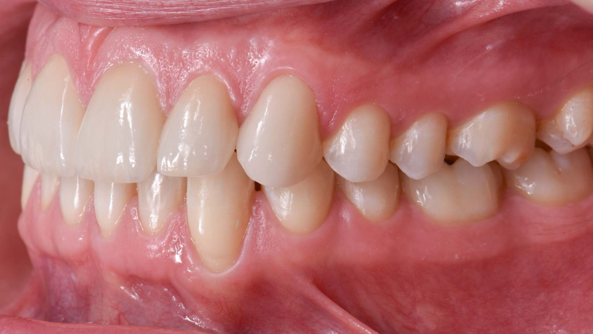 Esthetic Rehabilitation Of Anterior Teeth With Orthodontic