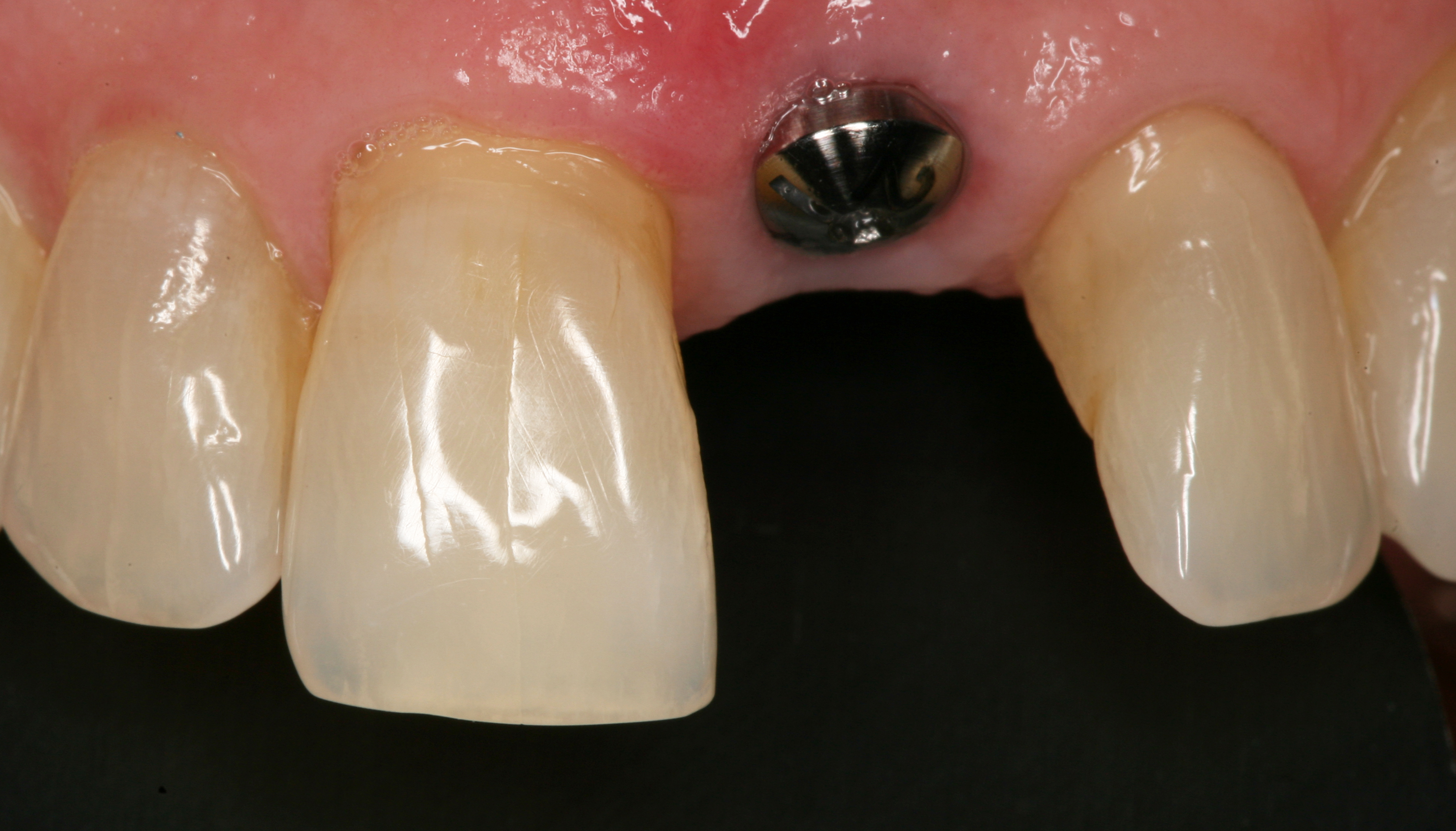 Replacement Of Fractured Maxillary Central Incisor For Org