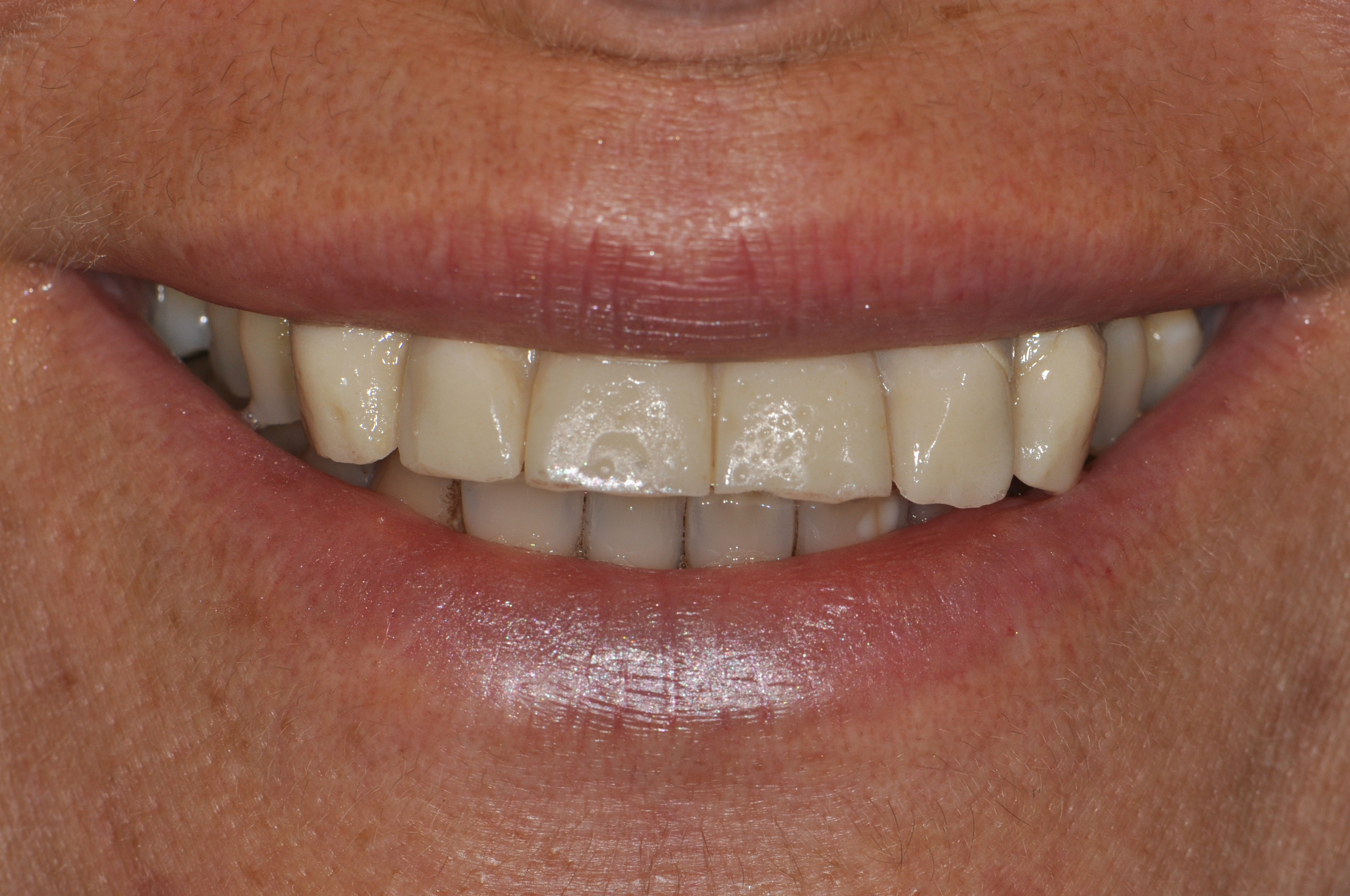 Successful esthetic implant therapy in site of past failure   FOR.org