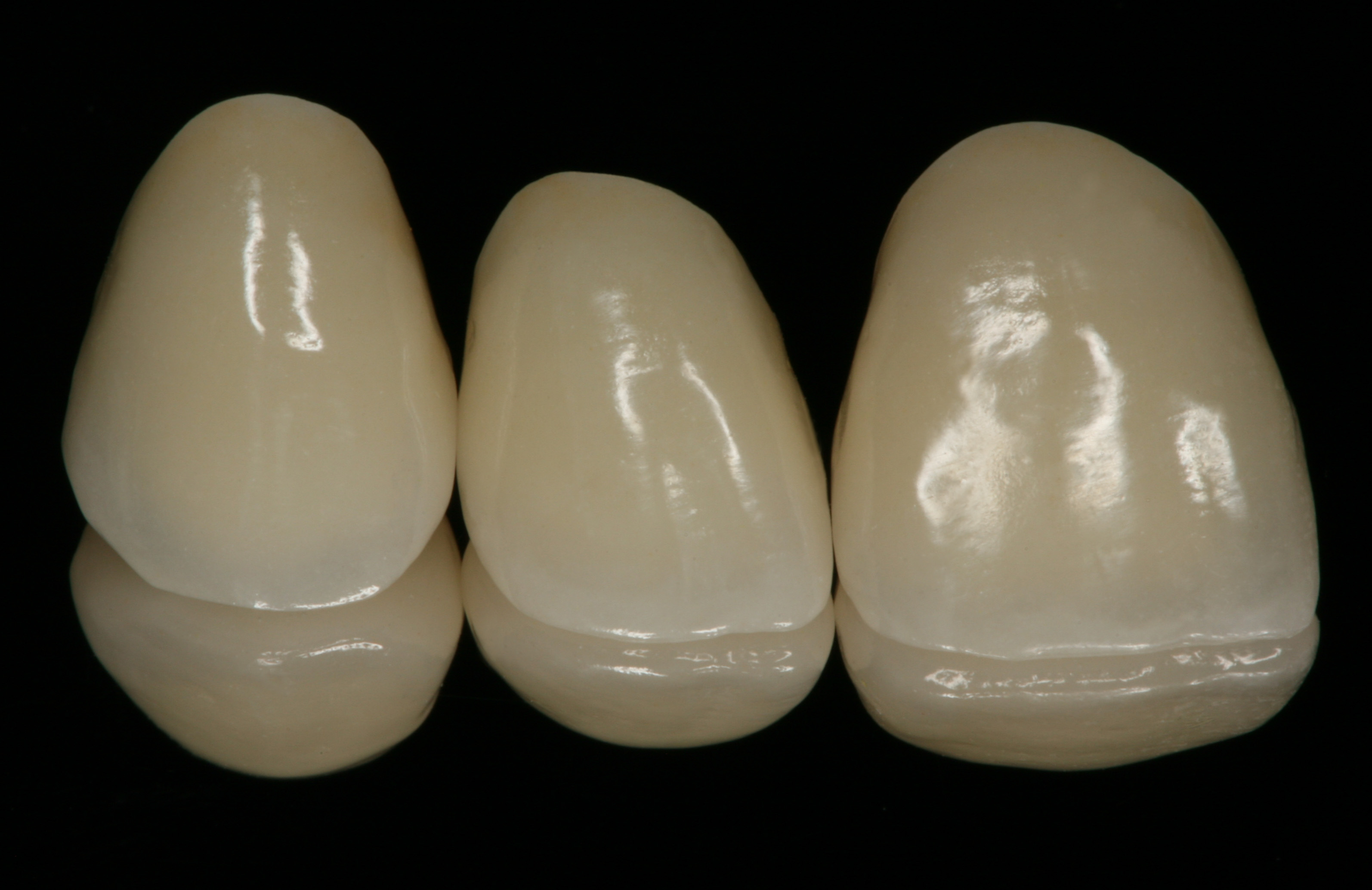 Six Maxillary Anterior All Ceramic Crowns For Org