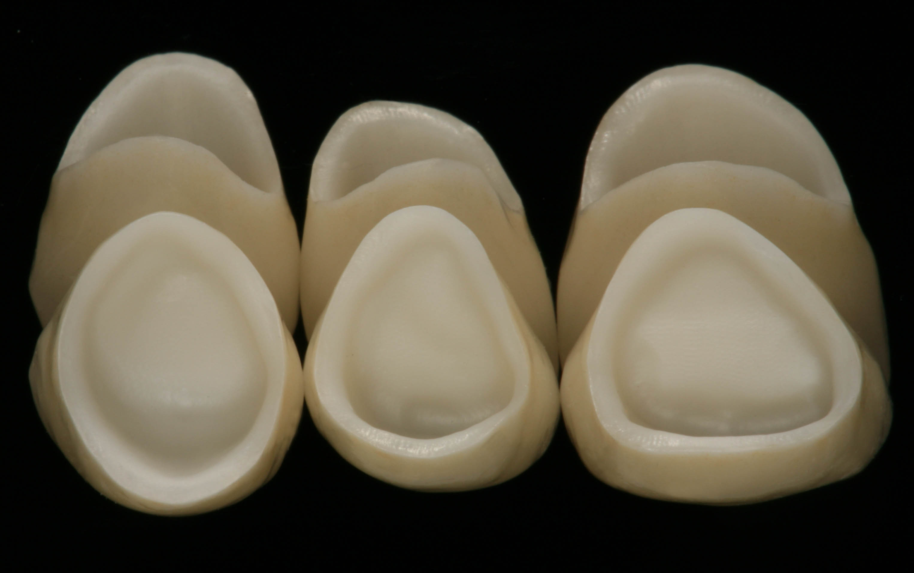 Six maxillary anterior all-ceramic crowns   FOR.org