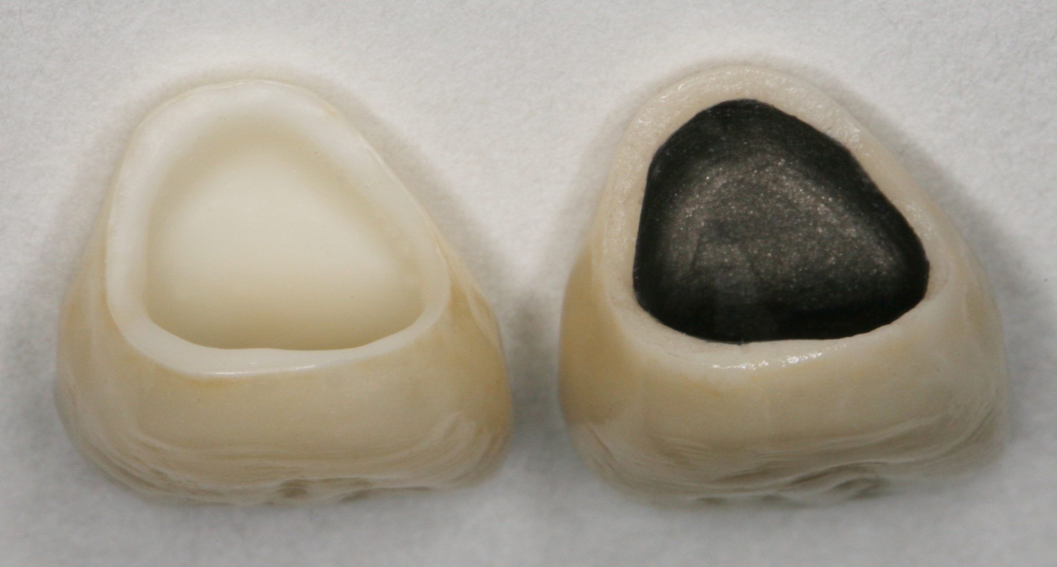 Metal-ceramic post & core and crown for maxillary central ...