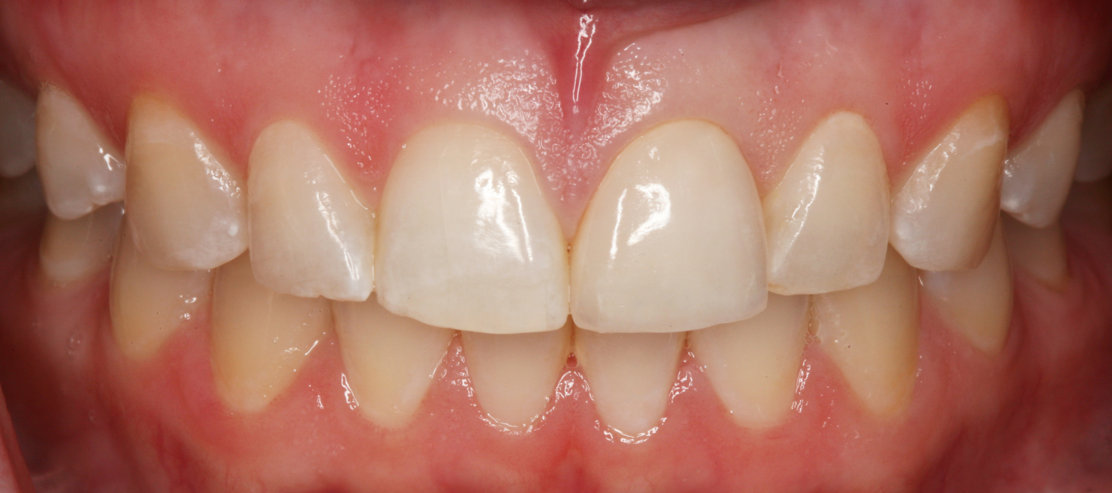 Maxillary Central Incisor All Ceramic Crown For Org