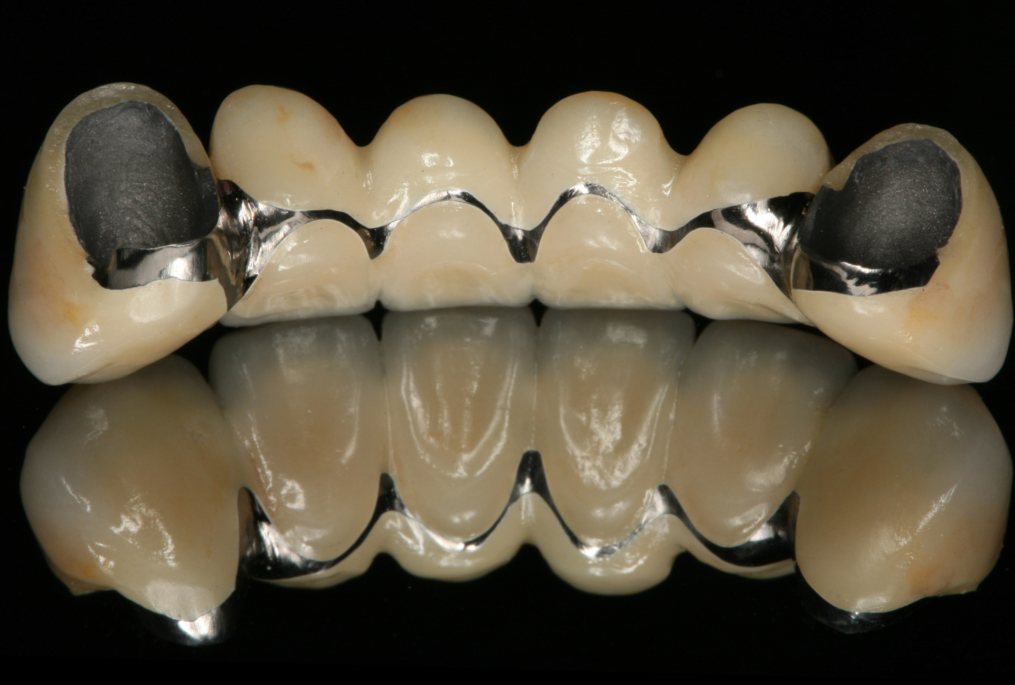 Maxillary And Mandibular Implant And Tooth Supported Restorations