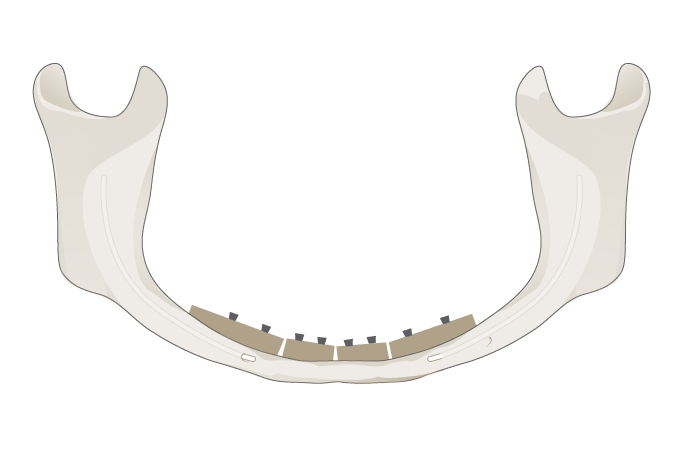 3066-grafting-mandible.png