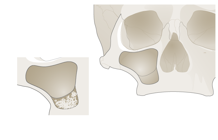 3067-grafting-upper-jaw-2.png