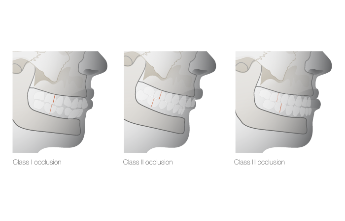 C1210-Malocclusion-types.png