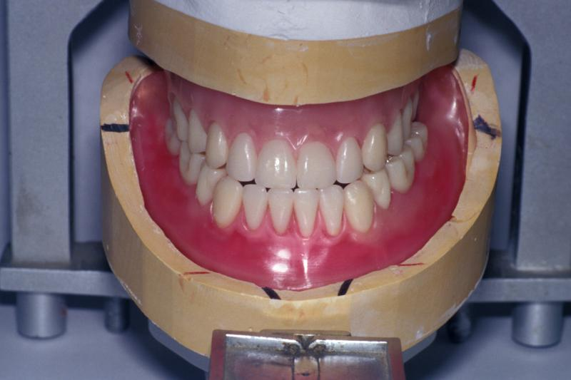 Rayspees wax trial dentures.jpg
