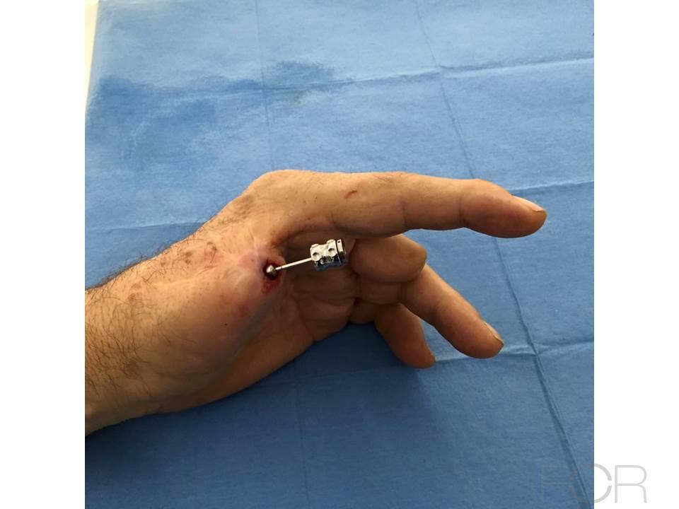 Extra Oral Implant For Replacement Of A Lost Finger 23 Year Ago