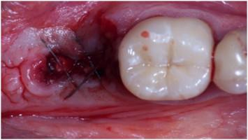 Suture Removal For Org