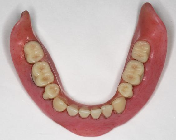 Maxillary complete denture with a mandibular implant overdenture ...