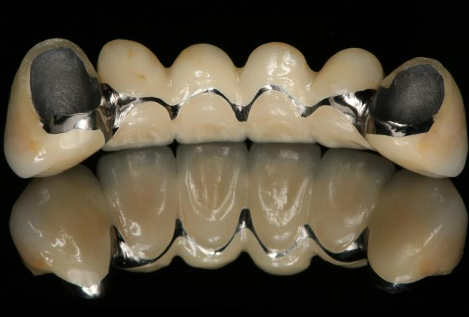 thesis dental implants The mini dental implant in fixed and removable prosthetics: a review he use of dental implants to replace natural teeth has become commonplace in contemporary.