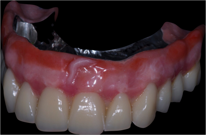 Maxillary implant-supported overdenture to replace a failed, fixed ...
