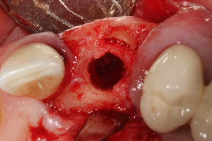Implant Placement Through An Impacted Canine For Org