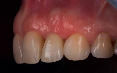 Intra-oral photograph 3 years post-treatment. Tissues around the implant were stable.