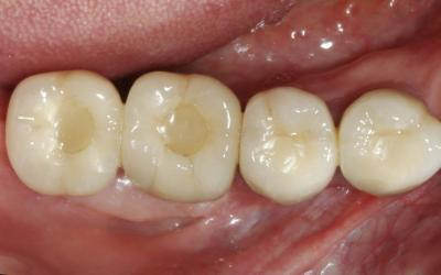 Intra-oral occlusal photograph after one year post-treatment.