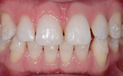 The upper anterior teeth were provisionally widened with composite resin restorations. This simplified the orthodontic treatment, as the treatment goal shifted from an even distribution of spaces, which is challenging to achieve, to a narrower closure of open spaces.