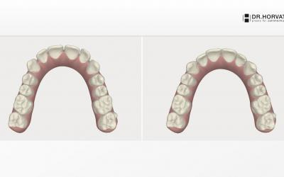 3-D virtual treatment plan simulation - occlusal view.