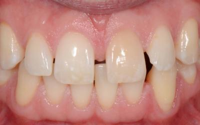 Initial intraoral frontal view.  Note the presence of a wide diastema between the upper central incisors and the discoloration of the upper left central incisor.