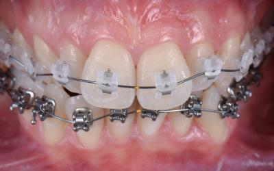 Frontal intra-oral view of fixed orthodontic buccal braces.