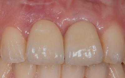 Intraoral follow up of the crowns over implant.