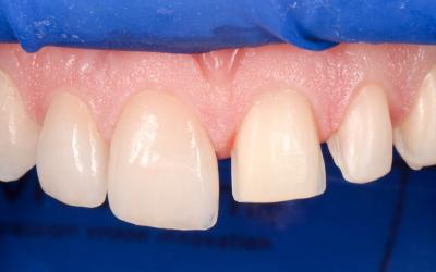 Adhesive bonding of final veneers.