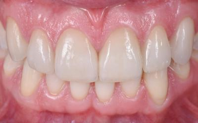 Frontal view after veneer bonding.