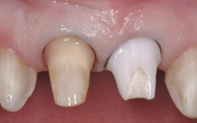 Upper crown cementation with retraction cord.