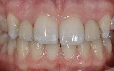 Frontal view of the resin-bonded fixed partial denture used as a provisional solution from 15-19 years age.