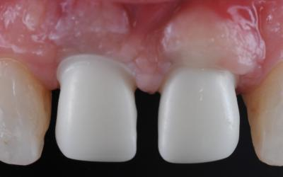 The cervical contour of the zirconia implant crown on tooth #11 FDI (#8 US) needs to be corrected so the finish line is located subgingivally due to a visible supra-gingival position.