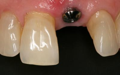 Healed site with healing abutment.