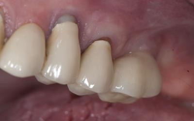 Definitive crown on tooth #26 (#14 US).