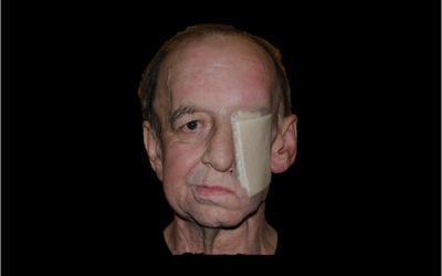 Gesichtsrekonstruktionssilikon — foto 4