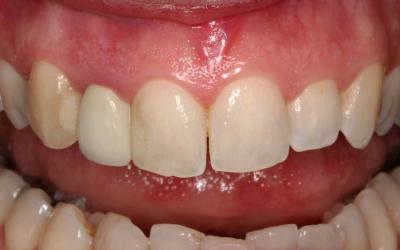 Initial situation with less than optimal periodontal health around the lateral incisor crown.