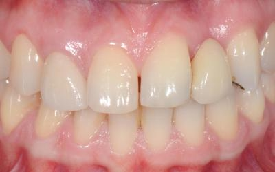 Initial intraoral frontal view. Note the malposition of tooth #21 FDI (9 US) apically and distally.