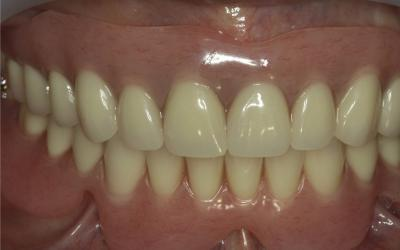Initial situation with removable denture in upper and lower jaw.