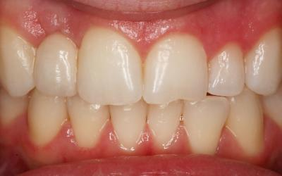 Clinical situation 2 months postcementation.