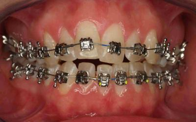 Intraoral frontal photograph on the day that fixed orthodontic appliances were placed. Damon System 2 braces were used with 0.014 copper NiTi round arch for both upper and lower arches. This orthodontic system uses passive self-ligating braces (using a 'sliding door' system as opposed to elastics to bond the arch and braces), designed to reduce friction from the braces on the orthodontic wire, promoting faster tooth movements with smaller forces.