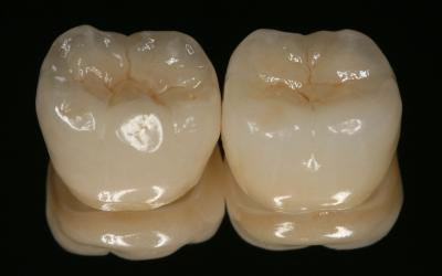 Both crowns in facial-occlusal view.