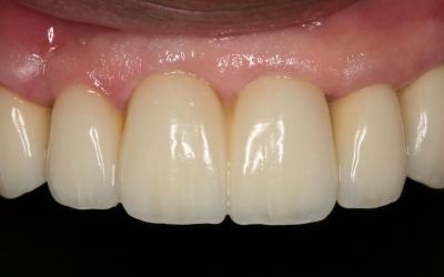 3-unit Maxillary FPD attached to 3 implants. Due to the use of 3mm diameter implants and the somewhat tall crowns, a fixed prosthesis was used that splinted the implants to help distribute the occlusal forces.