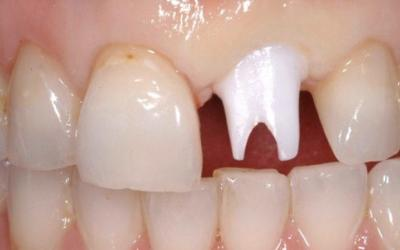 Abutment placement after cleaning and disinfection of components, note initial blanching and abutment has been carefully adjusted and shaped so that the labial gingival margin is at the correct level.
