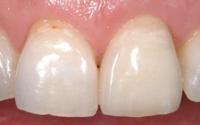 Restorative outcome: Final IPS e.max (lithium disilicate) crown #21 FDI (#9 US).