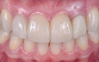 Intraoral frontal post-treatment view after placement of the final prostheses.