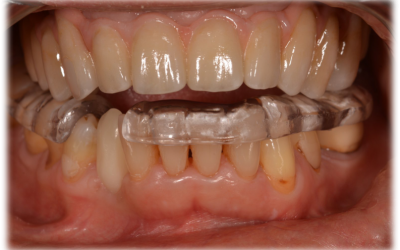 Frontal view of the surgical template positioned intraorally.