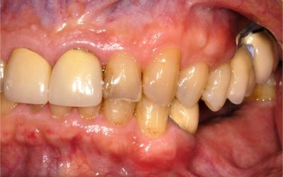 Buccal osseous resorption.
