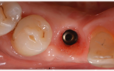 Occlusal view of the soft tissue before impression taking. The soft tissue is perfectly healed and shows the adequate emergence profile.