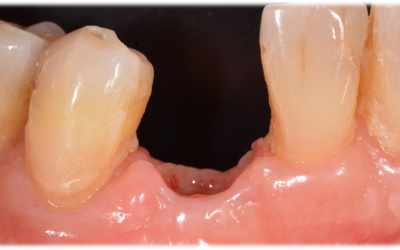 Buccal view of the soft tissue situation before impression taking.