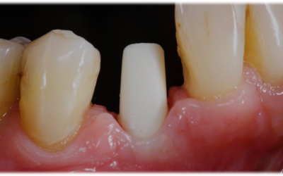 Screw-retained zirconia abutment placed on implant.