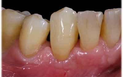 Definitive lithium disilicate single crown bonded onto the zirconia abutment.